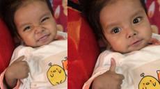 टिचिङमा कलेजो प्रत्यारोपण गरिएका ११ महिने बालकको मुस्कान र 'थम्ब्स अप'