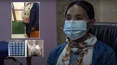 २३ वर्षीया छिमी शेर्पाले पाइन् नयाँ जीवन, जसको पेटबाट निकालियो ३३ किलो ट्युमर [भिडियो]