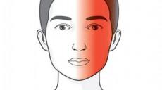 टिप्स: माइग्रेनका ५ लक्षण र ध्यान दिनुपर्ने ४ कुरा